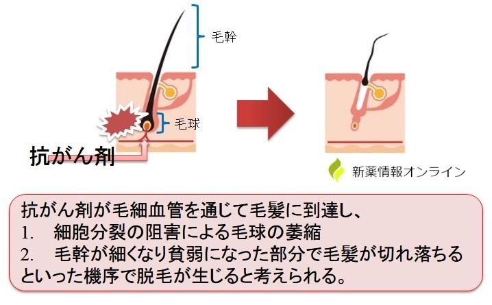 抗がん剤による脱毛の発現機序