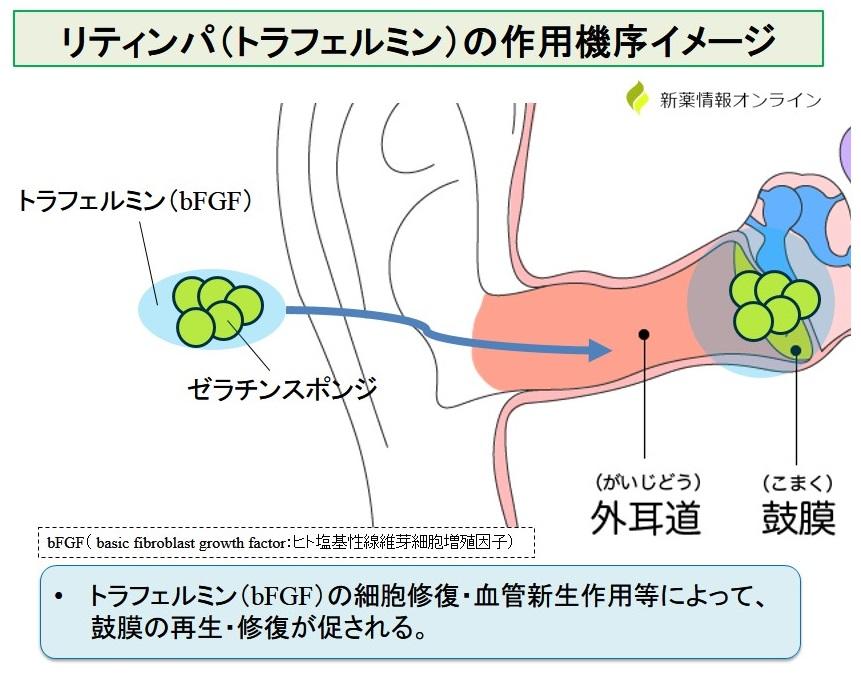 リティンパ耳科用(トラフェルミン)の作用機序:bFGFによる鼓膜再生・修復