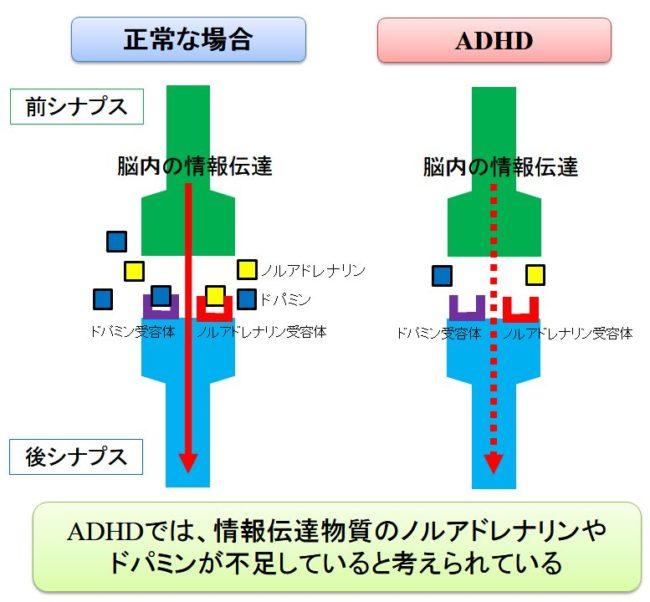 ADHDとノルアドレナリン・ドパミン