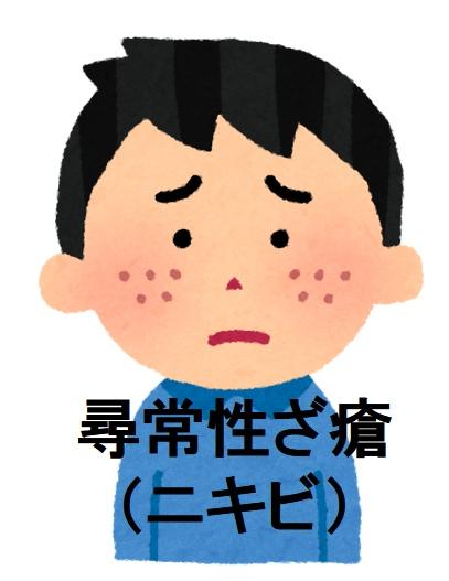 アックス ニキビ ビ ゼ ローション