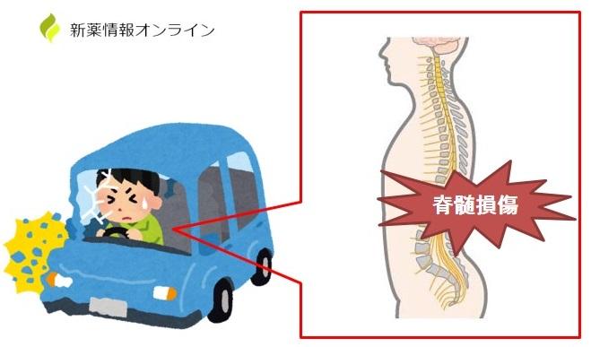 脊髄損傷とは