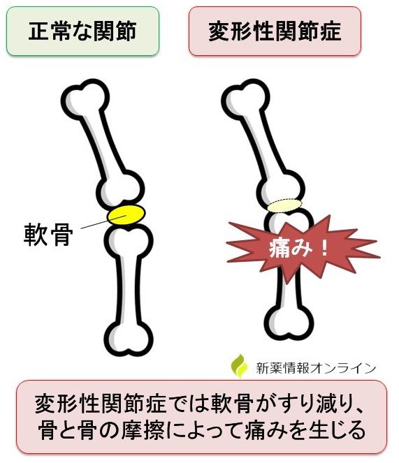正常な関節と変形性関節症:軟骨がすり減っている