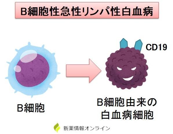 B細胞性急性リンパ性白血病