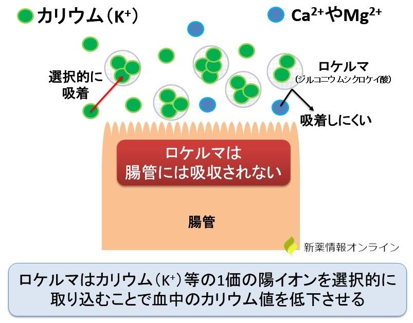 ロケルマ(ジルコニウムシクロケイ酸)の作用機序・特徴