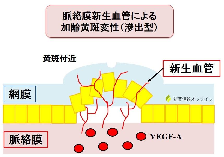 加齢黄斑変性と新生血管:VEGFの働き