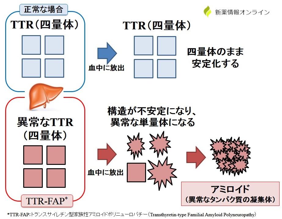トランスサイレチン型家族性アミロイドポリニューロパチー(TTR-FAP)の原因:アミロイドの凝集・沈着