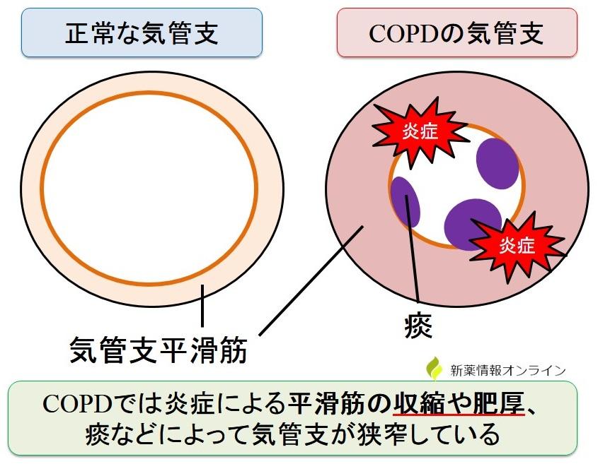 正常な気管支とCOPDの気管支:平滑筋の収縮や肥厚によって狭窄している