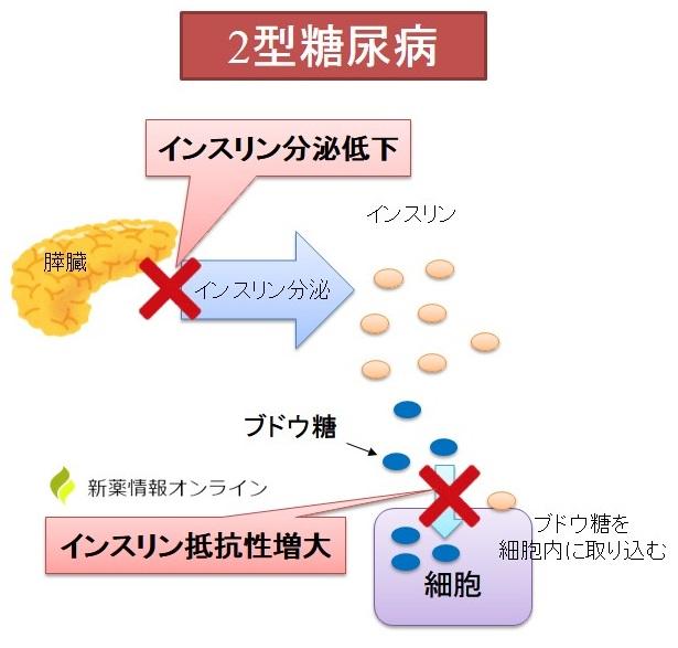 2型糖尿病の発症要因