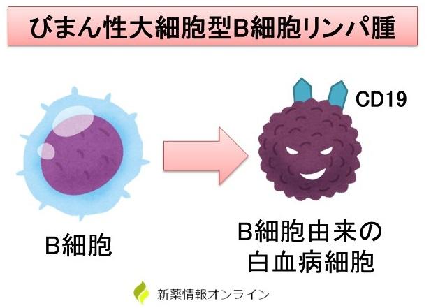 びまん性大細胞型B細胞リンパ腫(DLBCL:diffuse large B-cell lymphoma)とCD19