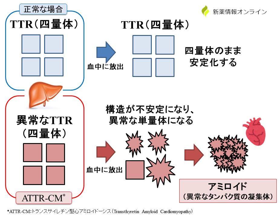 ATTR-CMの発症原因:異常なTTRが合成され、アミロイドが心臓に蓄積する
